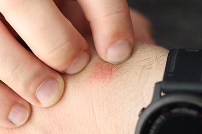 Como acabar com a infestação de pulgas?